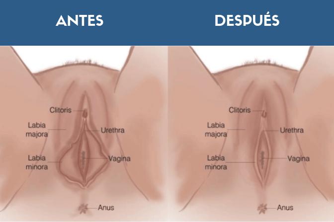 Antes y después Labioplastia ICMCE
