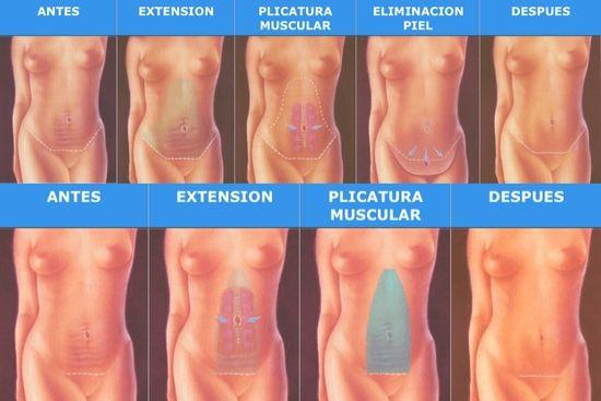 Abdominoplastia_ICMCE